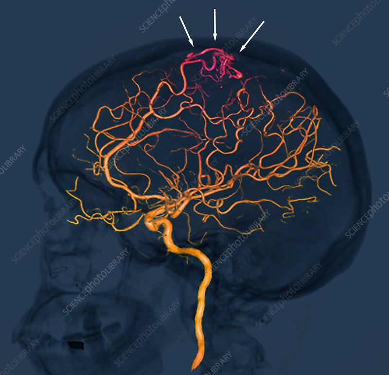 Brain vascular abnormality, 3D CT scan