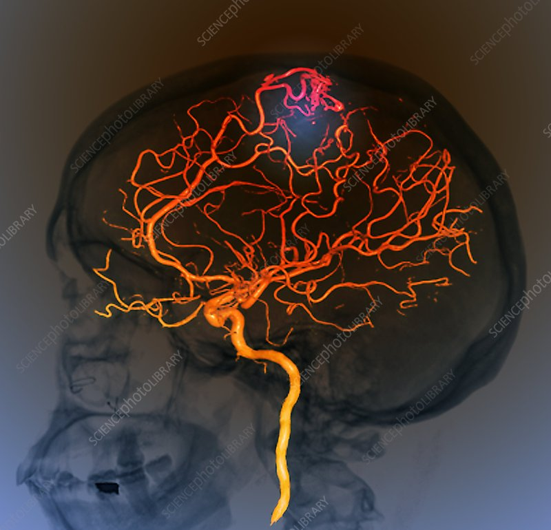 Brain vascular abnormality, 3D CT scan