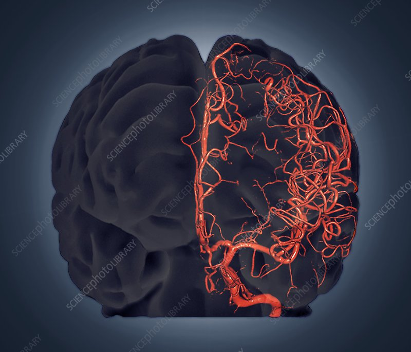 Brain vascular system, 3D CT scan