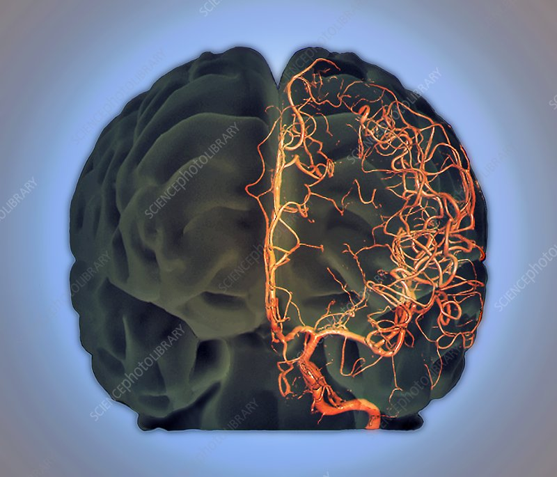 Brain vascular system, 3D CT scan