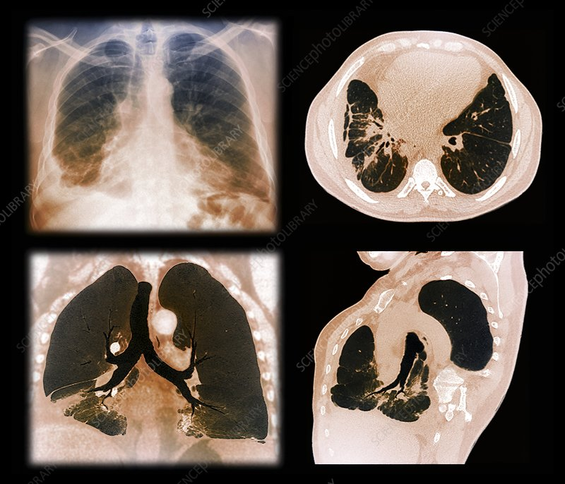 Kaposi's sarcoma of the lung, CT scans