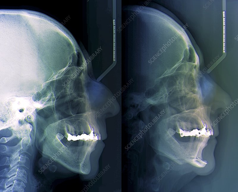 Facial plastic surgery, X-ray