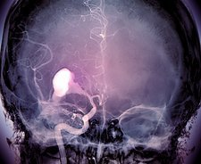 Brain haemorrhage, X-ray
