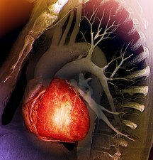 Healthy heart, 3D CT scan