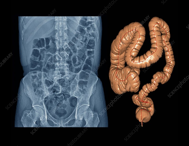 Healthy large intestine, X-ray & CT scan
