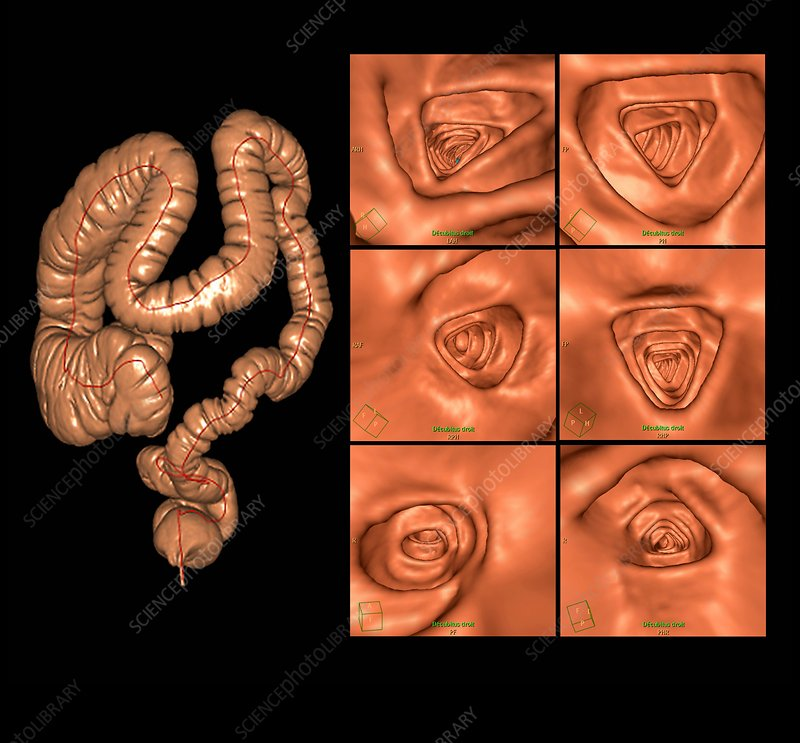 Healthy large intestine, CT scans