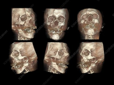 Traffic accident head injuries, CT scan