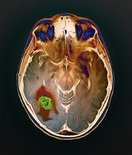 Brain cancer, MRI scan