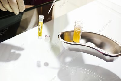 Urine chlamydia test