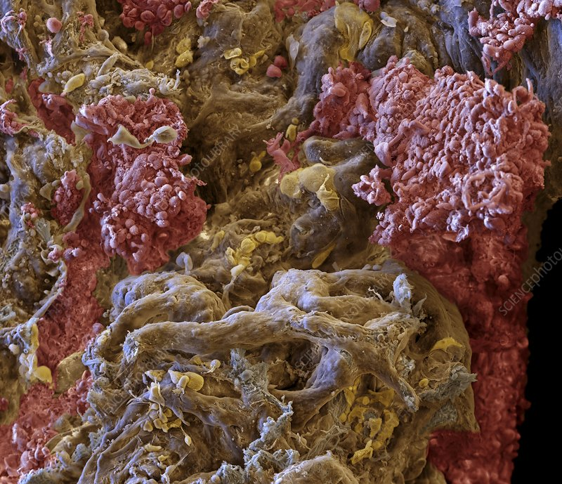 Lung cancer, SEM