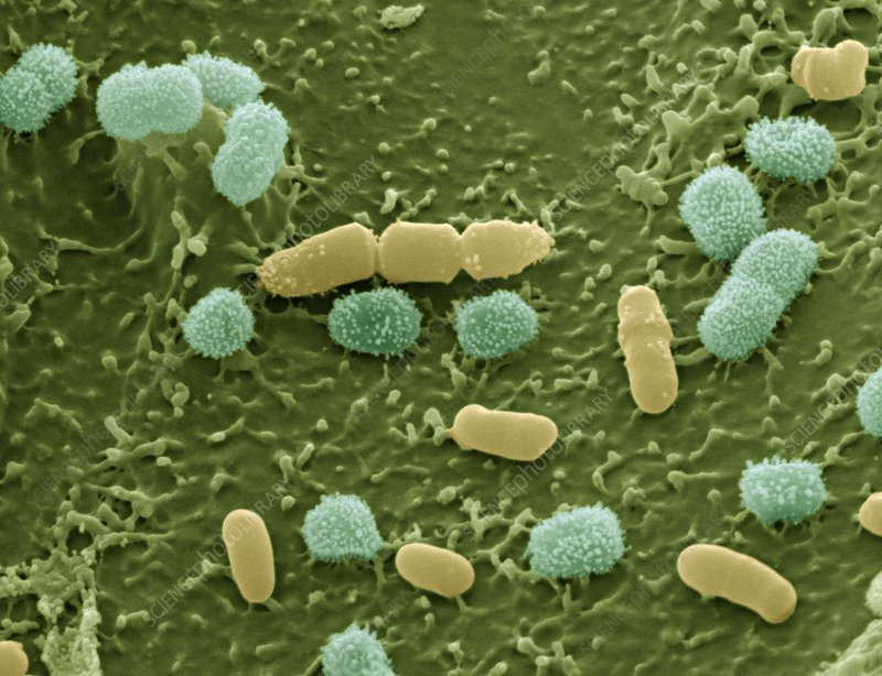 Bacteria on aphid, SEM