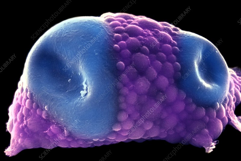 Distended fat cell, SEM