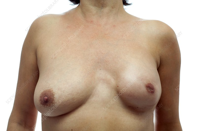 Breast cancer, surgical treatment