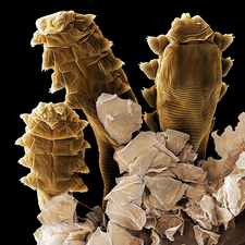 Follicle mite heads (SEM)