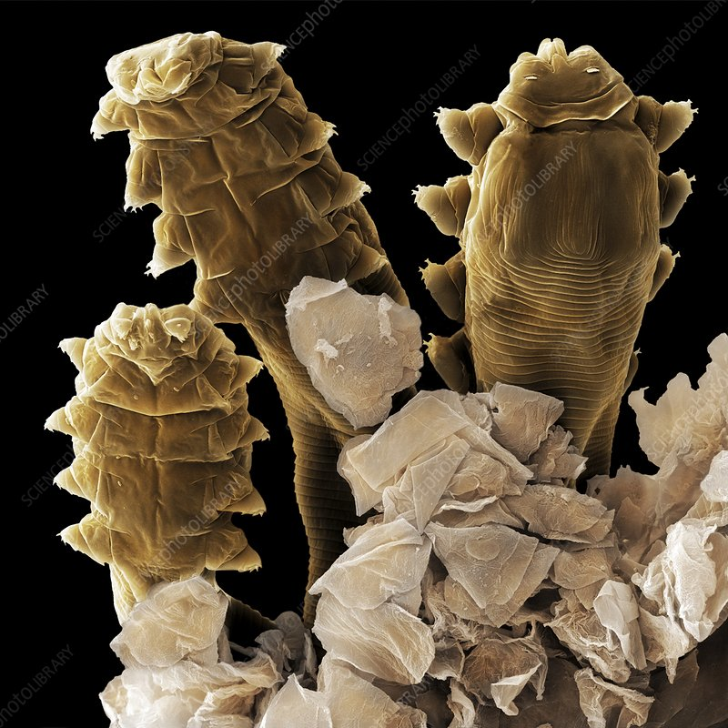 Follicle mite heads (SEM)