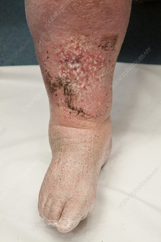 Infected lymphoedema