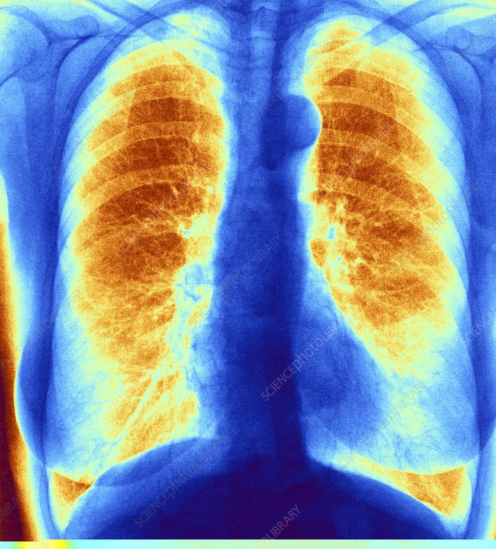 Normal chest, coloured x-ray