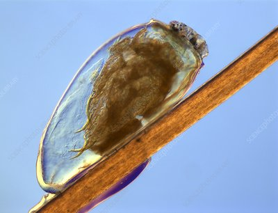 Egg of human head louse pediculus, LM