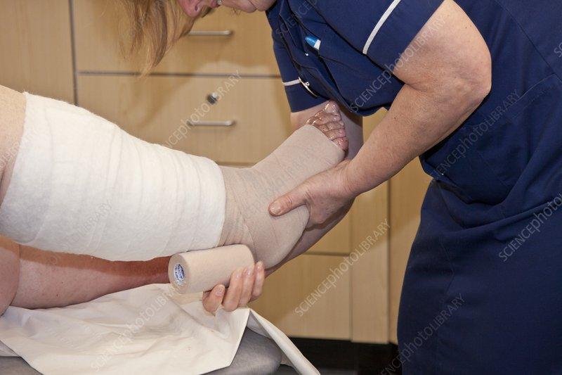 Nurse dressing a patient's leg