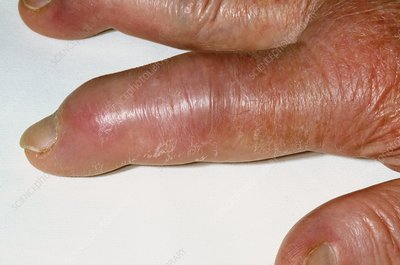 Finger swollen with gout