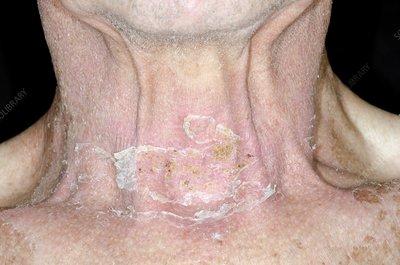 Skin damage after radiotherapy