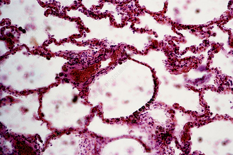 Healthy lung tissue, light micrograph - Stock Image C013/6995 ...