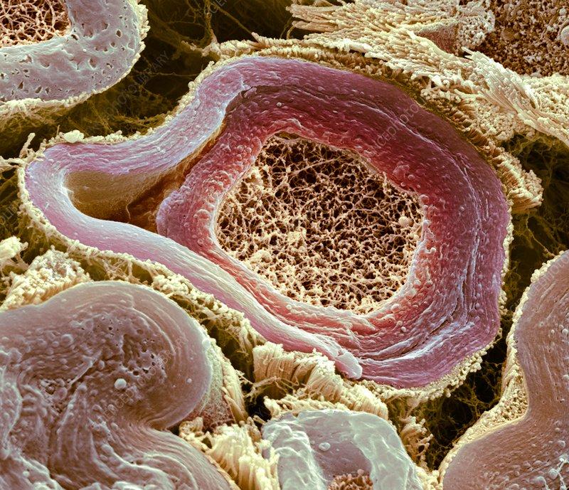 Myelinated nerves, SEM