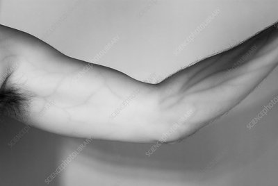 Human arm, infrared image