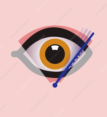 Eye surgery, conceptual artwork