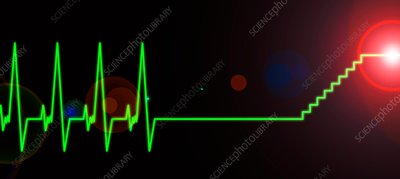 Near-death experience, heartbeat trace