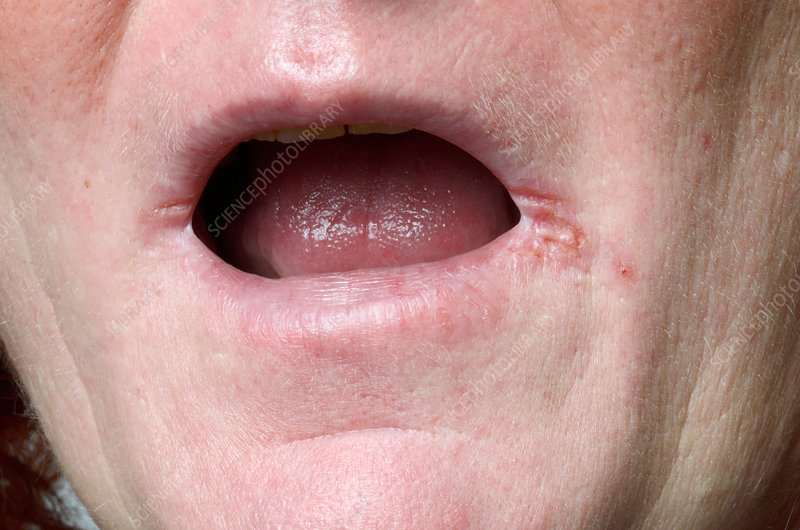 treat cold sores home remedies cold sores