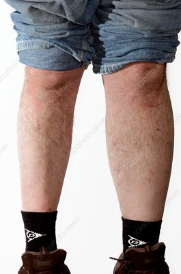 Muscle wasting in the lower leg