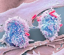 Dividing cancer cell, SEM
