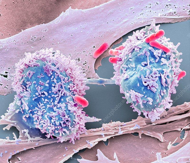 Dividing cancer cell, SEM