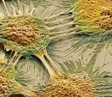 Vaginal cancer cells, SEM