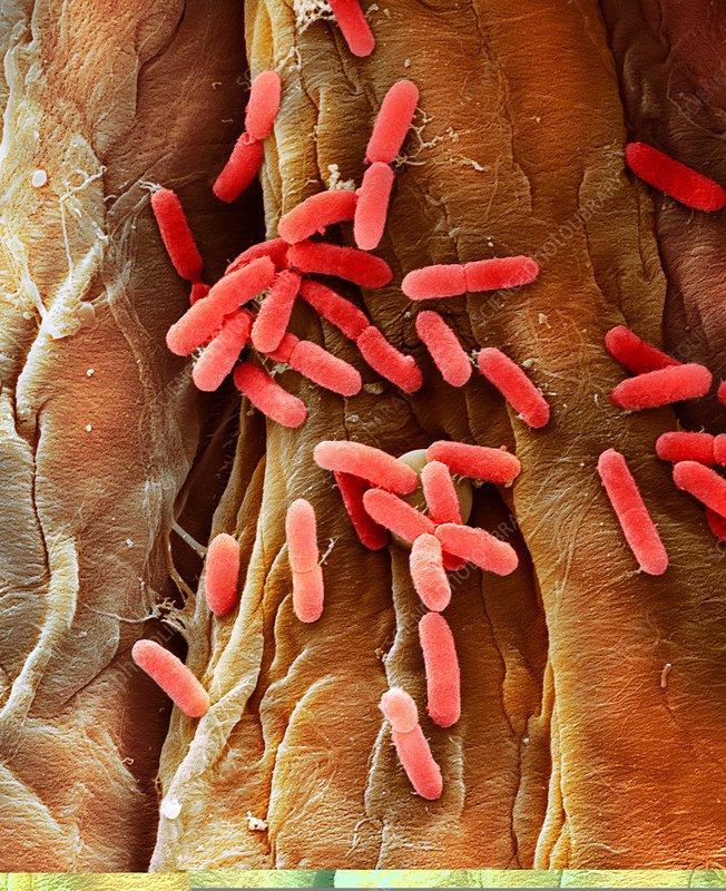 E. coli bacteria, SEM - Stock Image C014/0385 - Science Photo Library