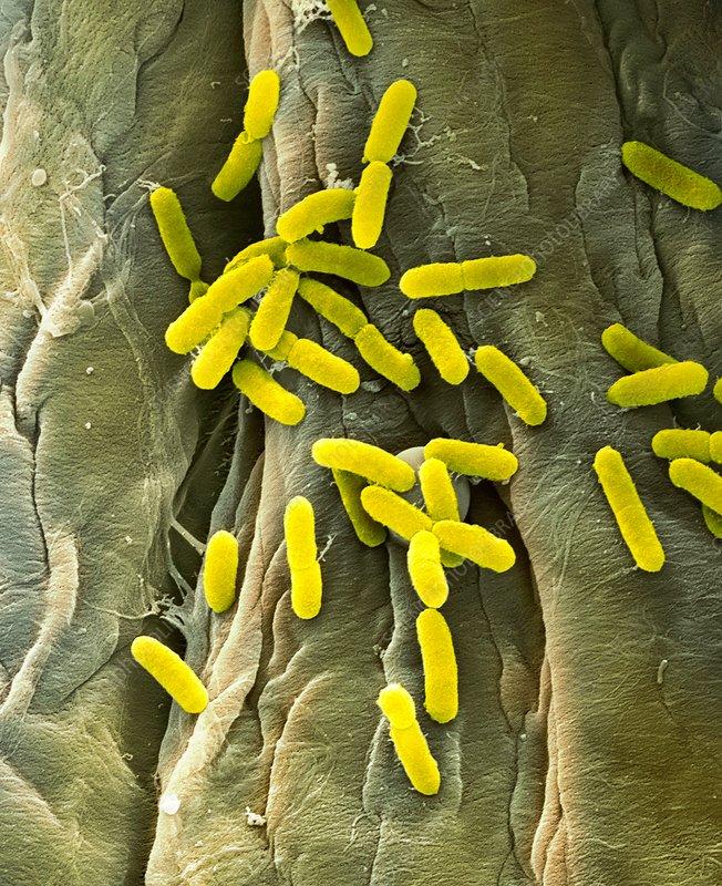 E Coli diarrheal infection Symptoms causes and treatment