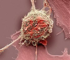 Bone cancer cell , SEM