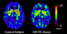 Brain damage due to drugs, PET scans