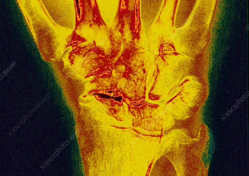 Osteoarthritis of the wrist, X-ray