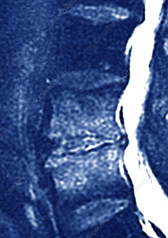 Spondylodiscitis, MRI scan