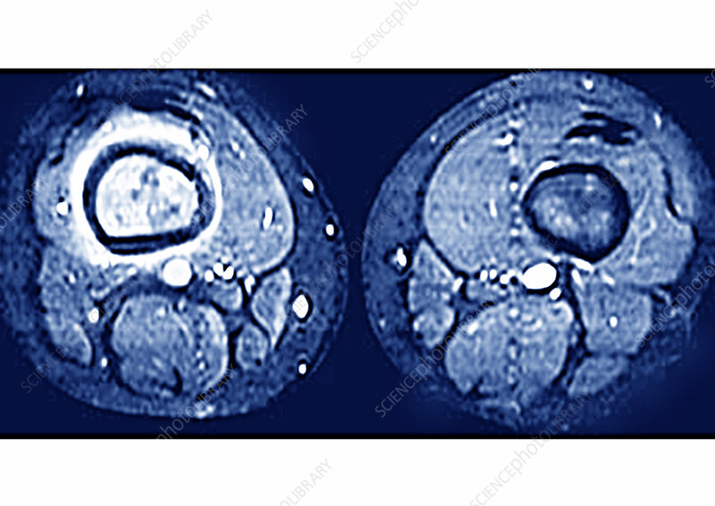 Bone cancer, MRI