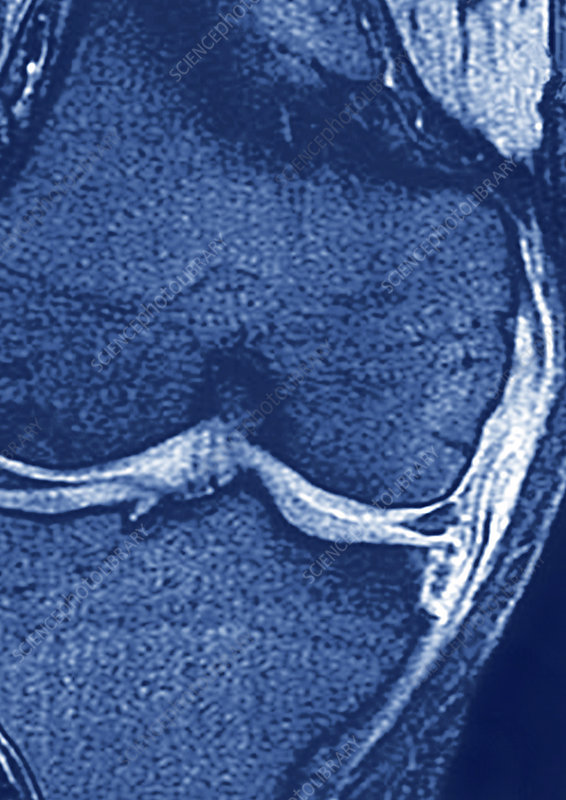 Tendinitis of the knee, MRI scan