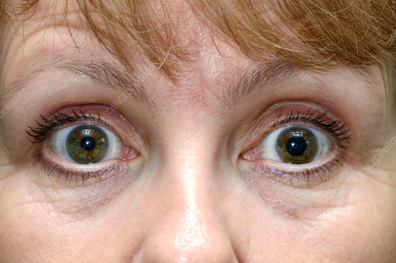 Dilated pupil in Holmes-Adie syndrome