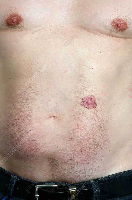 Basal cell skin cancer on the body
