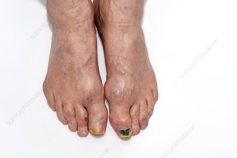 Gout in the toes