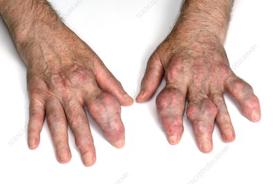 Gout in the fingers