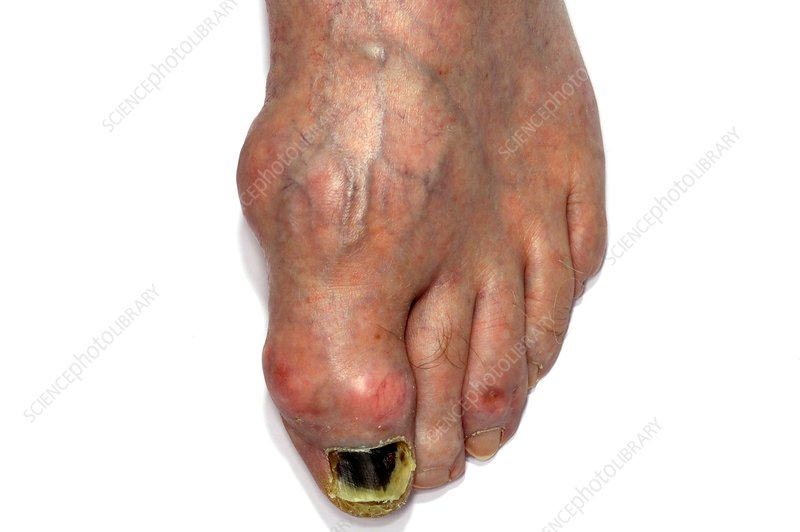Gout in the large toe