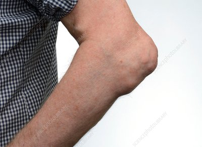 Gout tophi in the elbow
