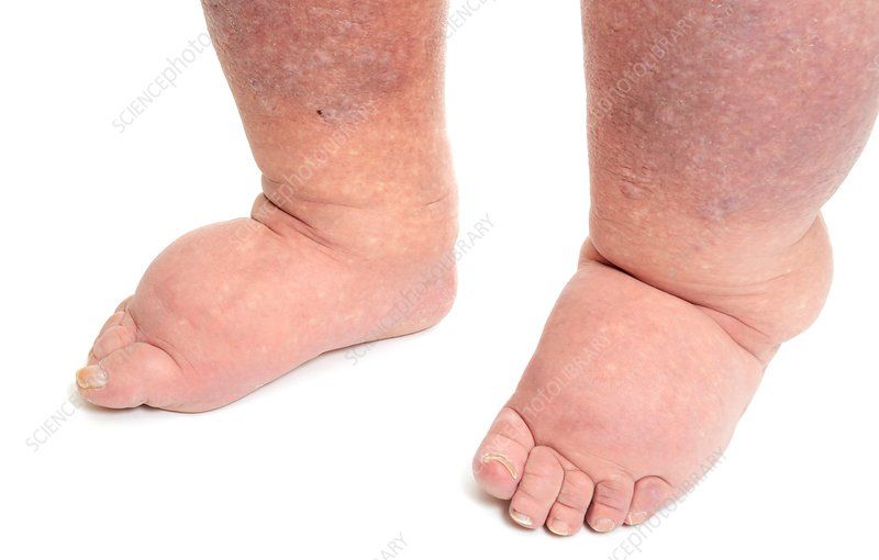 Lymphoedema in the feet